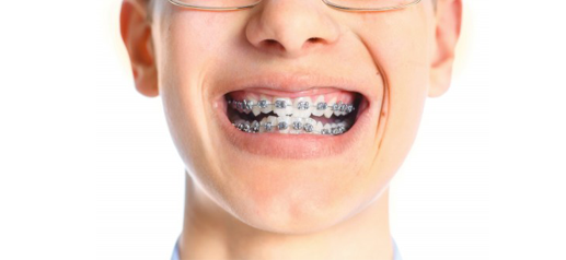Affordable braces for teenagers in the Midlands - image