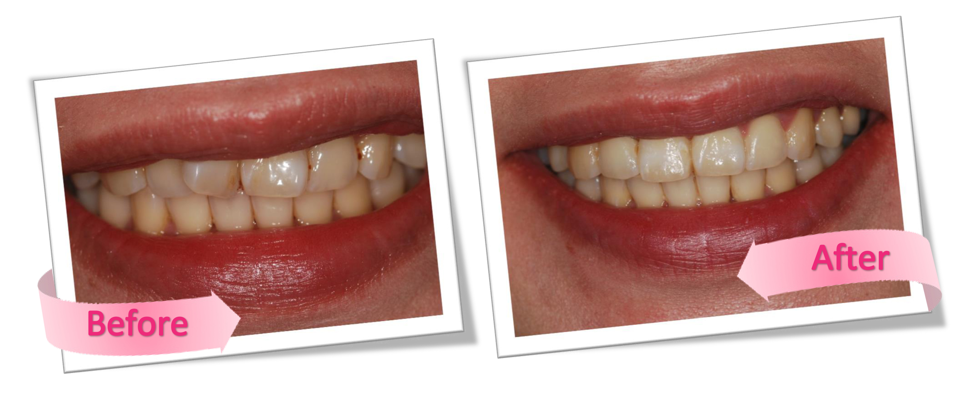 the benefits of 6 months braces in Loughborough