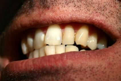 How to Correct Misaligned Teeth in Leicester - image
