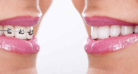 Am I too old to have braces? - image