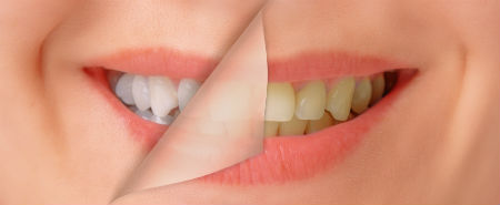 Adding the Finishing Touches after Braces - image