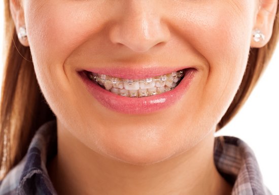 How to handle dental braces problems in Loughborough - image