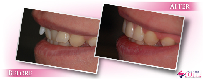 treating-sticky-out-teeth-in-leicester-3