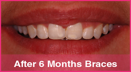 Are you too scared to have any dental treatment done but want your teeth straightened? - image