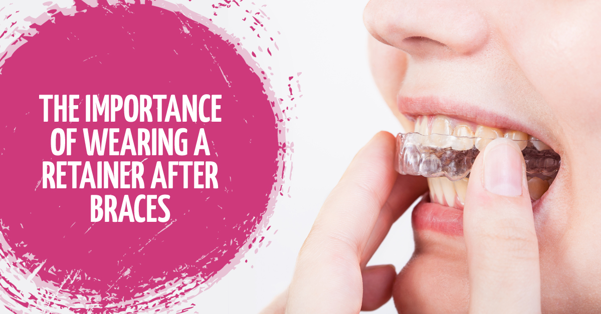 Why Is It Important To Wear Retainers After Having Braces?