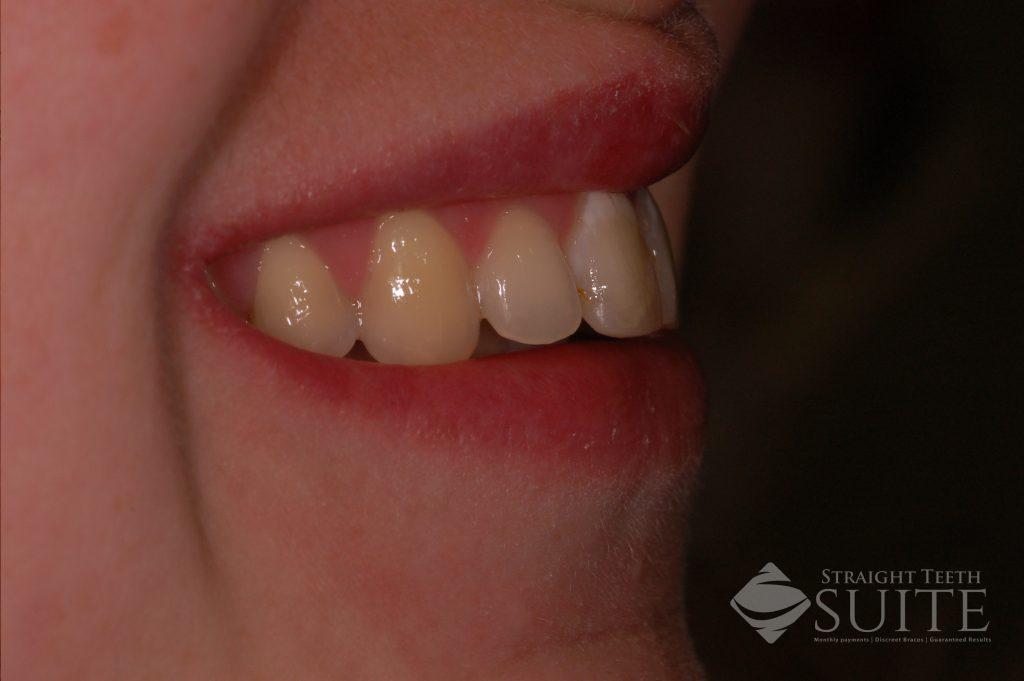Improve Dental Health Naturally