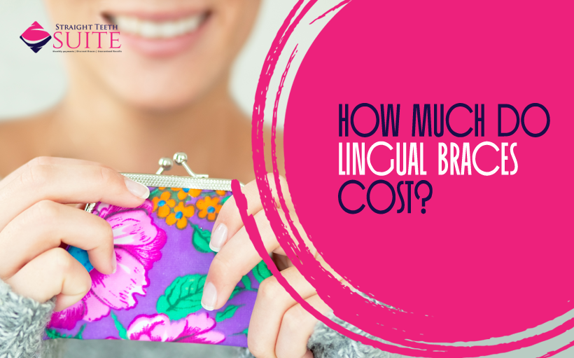 How Much do Lingual Braces Cost in Leicester?