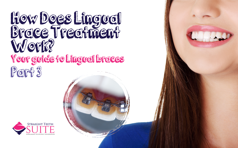 How Does Lingual Brace Treatment in Nottingham Work ...