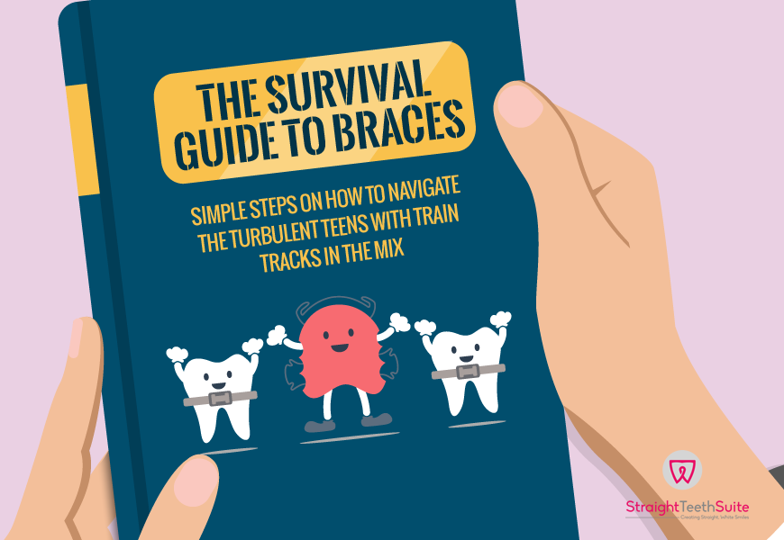 The Survival Guide for Teens and their Braces