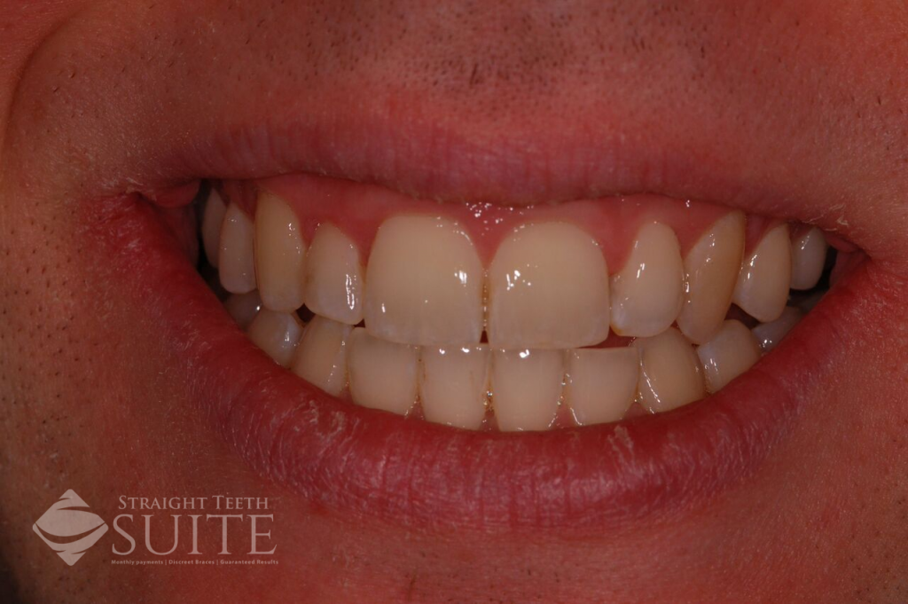 Best options for straightening front teeth