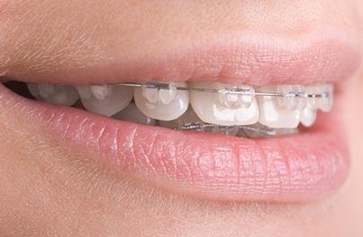 6 Month Braces teeth straightening photo