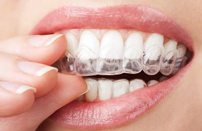 Invisalign & Clear Aligners teeth straightening photo