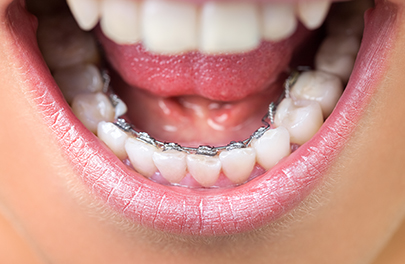Lingual Braces teeth straightening photo