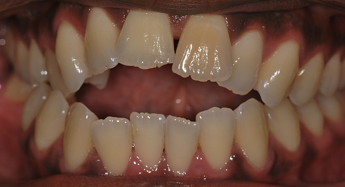 Straight teeth before image