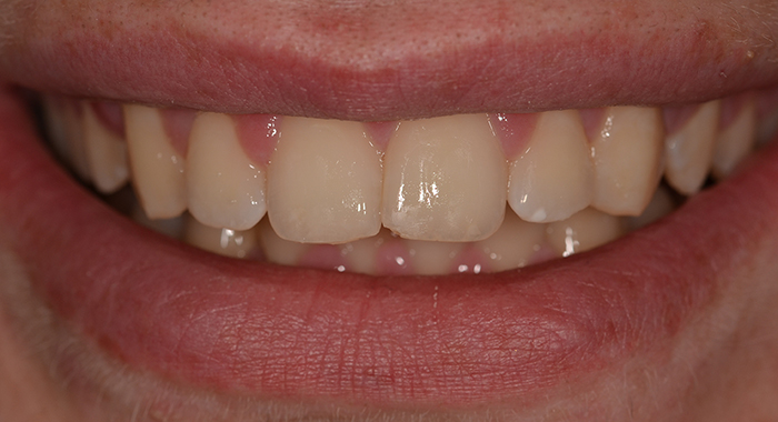 Straight teeth after image