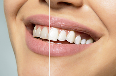Teeth Whitening teeth straightening photo